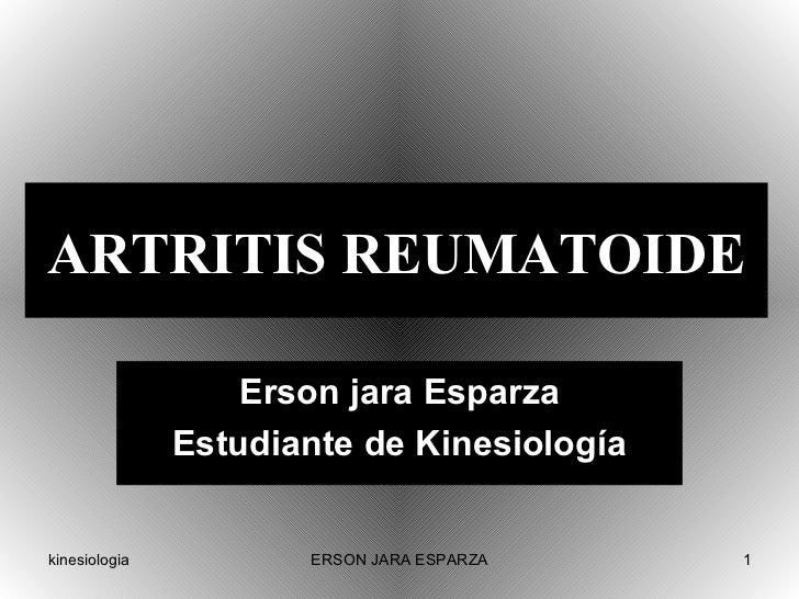 ARTRITIS REUMATOIDE Erson jara Esparza Estudiante de Kinesiología