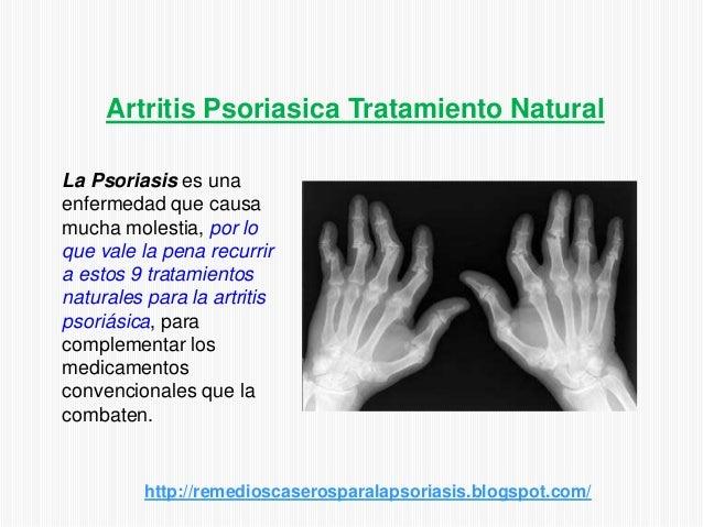 Artritis Psoriasica Tratamiento NaturalLa Psoriasis es unaenfermedad que causamucha molestia, por loque vale la pena recur...