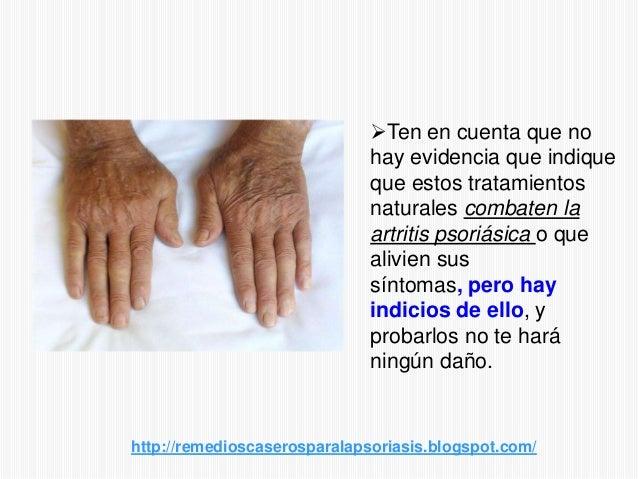 Ten en cuenta que nohay evidencia que indiqueque estos tratamientosnaturales combaten laartritis psoriásica o quealivien ...