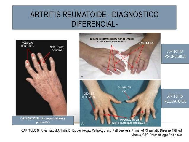is psoriasis a rheumatic disease