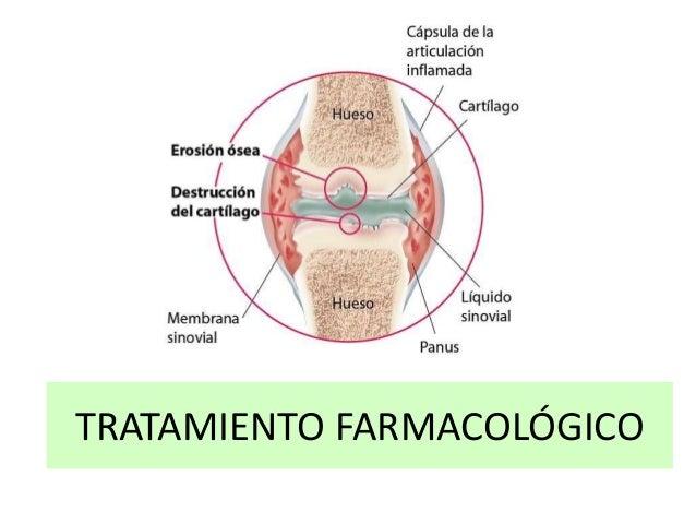 Artritis Reumatoide Definicin