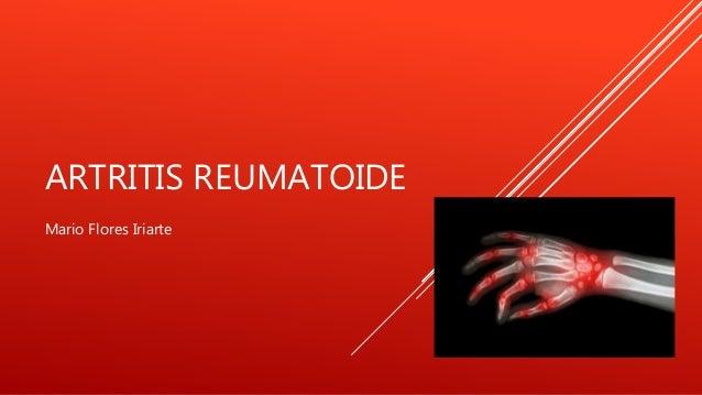 ARTRITIS REUMATOIDE Mario Flores Iriarte
