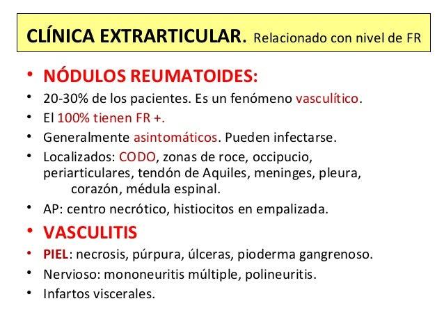 CLÍNICA EXTRARTICULAR. Relacionado con nivel de FR • NÓDULOS REUMATOIDES: • 20-30% de los pacientes. Es un fenómeno vascul...