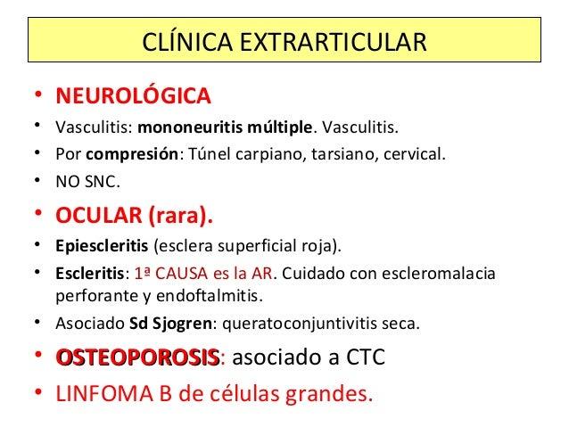 • NEUROLÓGICA • Vasculitis: mononeuritis múltiple. Vasculitis. • Por compresión: Túnel carpiano, tarsiano, cervical. • NO ...