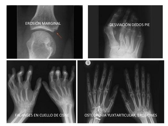 EROSIÓN MARGINAL DESVIACIÓN DEDOS PIE FALANGES EN CUELLO DE CISNE OSTEOPENIA YUXTARTICULAR, EROSIONES