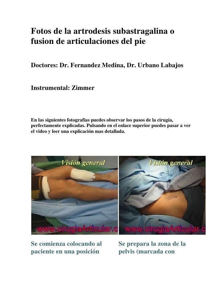 Fotos de la artrodesis subastragalina ofusion de articulaciones del pieDoctores: Dr. Fernandez Medina, Dr. Urbano LabajosI...