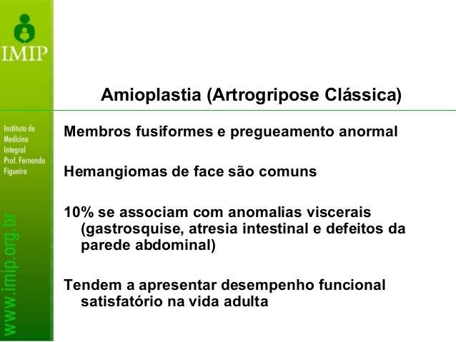 Amioplastia (Artrogripose Clássica) Acometimento dos membros superiores é o mais significativo Punho em flexão e demais ar...