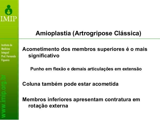 Amioplastia (Artrogripose Clássica) Tratamento: Multidisciplinar Fisioterapia precoce Intervenções cirúrgicas podem ser ne...
