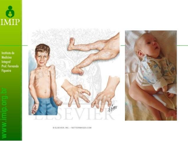 Amioplastia (Artrogripose Clássica) Membros superiores: Tratamento visa a independência para a própria higiene e alimentaç...