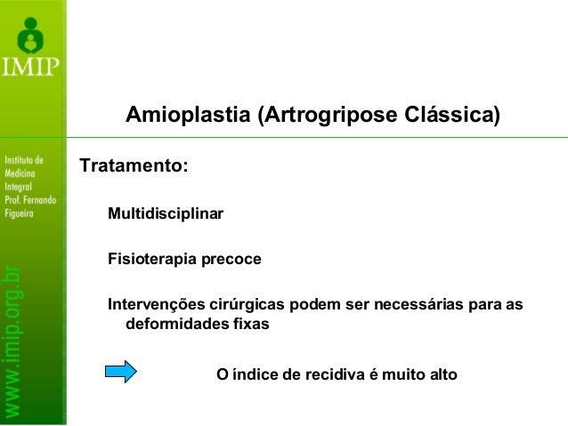 Amioplastia (Artrogripose Clássica) Membros inferiores: Quadril: manipulação e gessos corretivos (cirurgia é eventual) Mui...