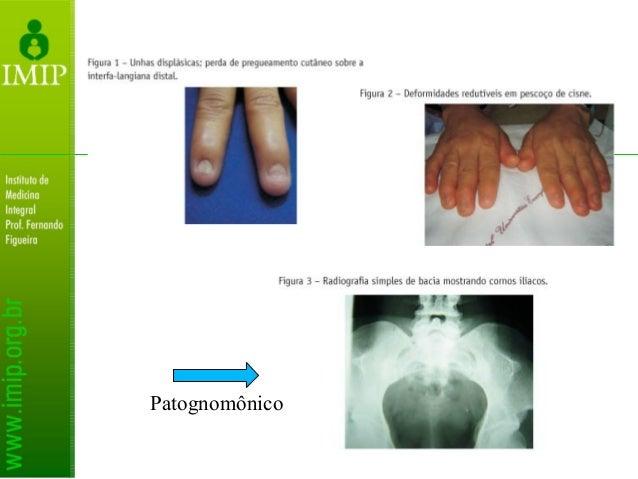 Deformidades da mão: Desvio ulnar dos dedos nas metacarpofalângicas Deformidade em flexão de metacarpofalângicas e interfa...