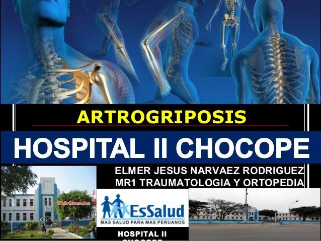 HOSPITAL II ARTROGRIPOSIS ELMER JESUS NARVAEZ RODRIGUEZ MR1 TRAUMATOLOGIA Y ORTOPEDIA