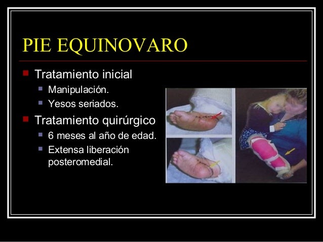 PIE EQUINOVARO  Objetivo es un pie plantígrado asintomático.  Artrodesis en pie deforme esqueleticamente maduro.  95 % ...