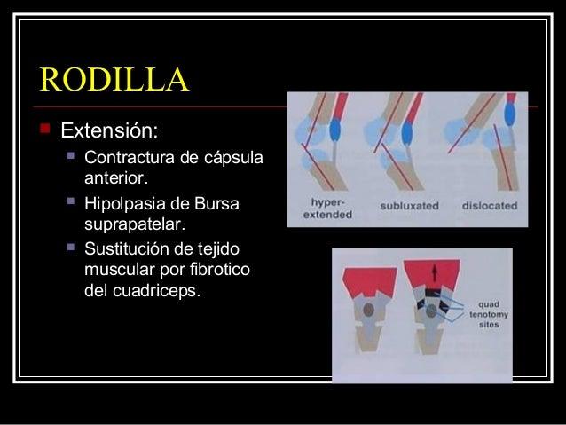 CADERA  Deformidades de la cadera:  Sin luxación (40 % amioplasia):  Abdución rotación lateral – flexión.  Abducción s...