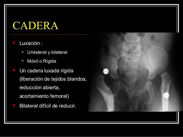 CODO  Contractura en extensión  Pronación del antebrazo, flexión muñeca.  Incapacidad funcional severa.  Elongación tr...