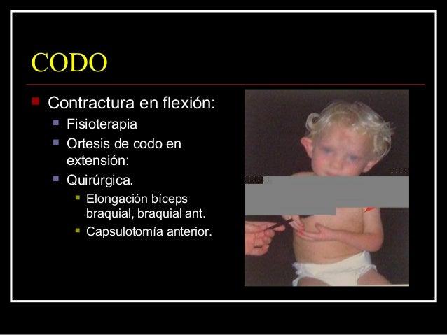 CODO  Transferencias tendinosas (5-6 años).  Meta básica del tratamiento  Satisfacer necesidades fisiológicas.