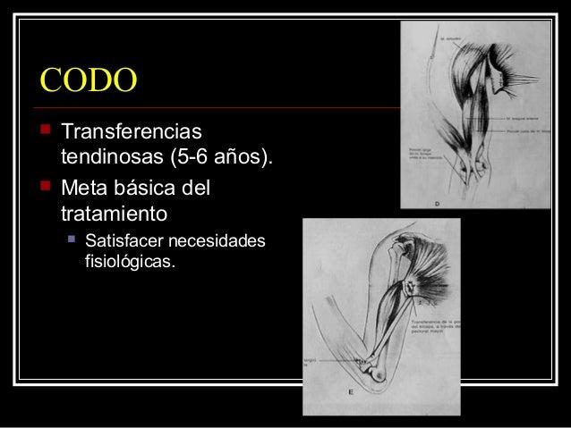 MUÑECA  Estabiliza 5 a 10 grados flexión palmar.  Movilidad del codo.  Osteotomías cuneiformes dorsal radio y cubito. ...