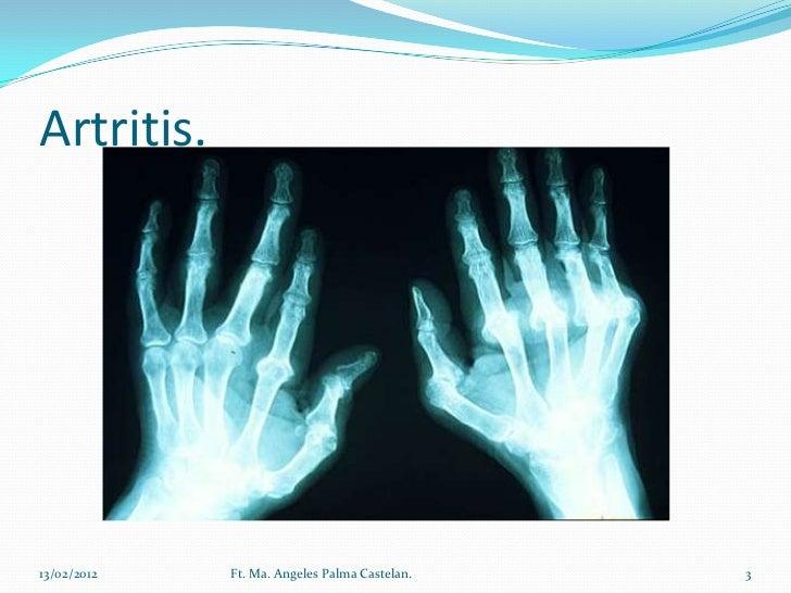 Artropatias Slide 3