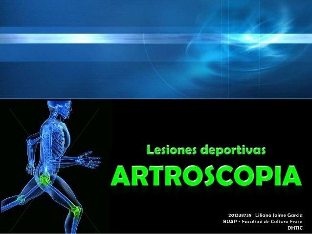 1 2 3 4 5 6  • Artroscopia • Lesiones donde se utiliza la Artroscopia • Tipos de lesiones articulares • Instrumentos para ...
