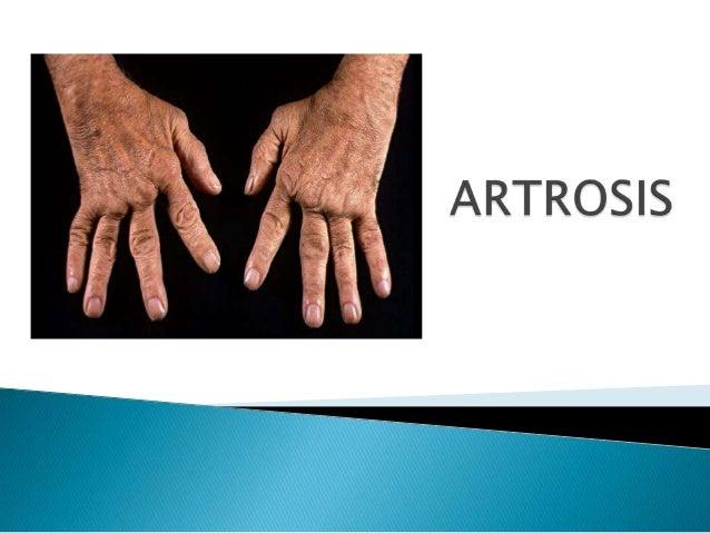  Es una enfermedad articular degenerativa caracterizada por la destrucción del cartílago articular y neoformacion ósea co...