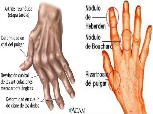 El hongo en la piel de las manos de los pies de la foto