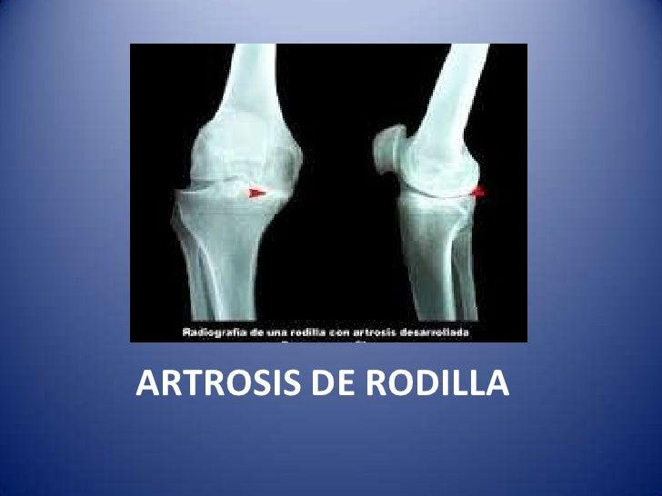ARTROSIS DE RODILLA<br />
