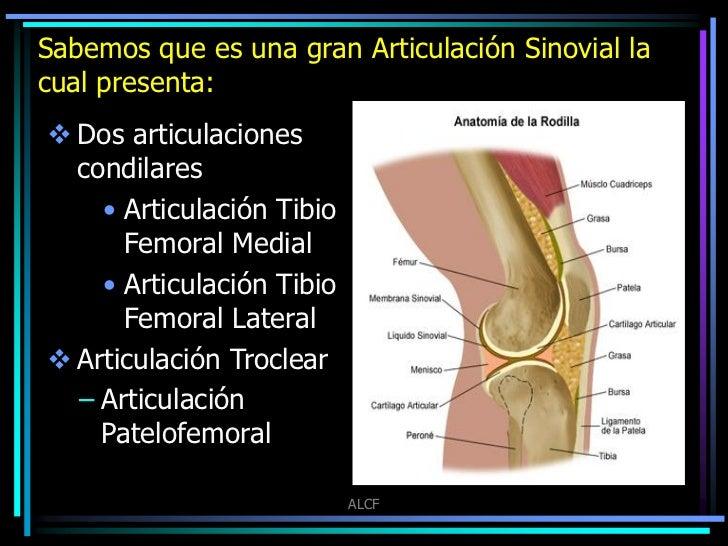 Artrosis femorotibial