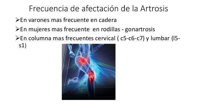 Artrosis definición