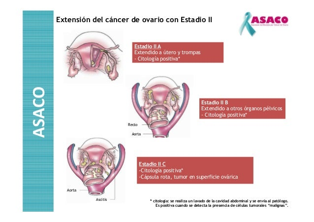 Cirurgia de cancer de ovario pictures to pin on pinterest - Tratamiento para carcoma ...