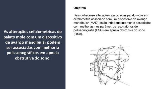 Objetivo Desconhece-se altera��es associadas palato mole em cefalometria associado com um dispositivo de avan�o mandibular...