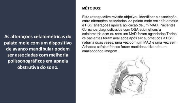 M�TODOS: Esta retrospectiva revis�o objetivou identificar a associa��o entre altera��es associadas do palato mole em cefal...