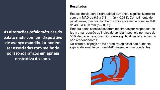 Resultados Espa�o de via a�rea retropalatal aumentou significativamente com um MAD de 6,6 a 7,3 mm (p = 0,013). Compriment...