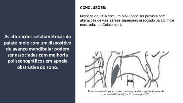 Comprimento do palato mole, diminuiu tamb�m significativamente com um MAD de 43,6 a 42,3 mm (p = 0,02). CONCLUS�ES: Melhor...