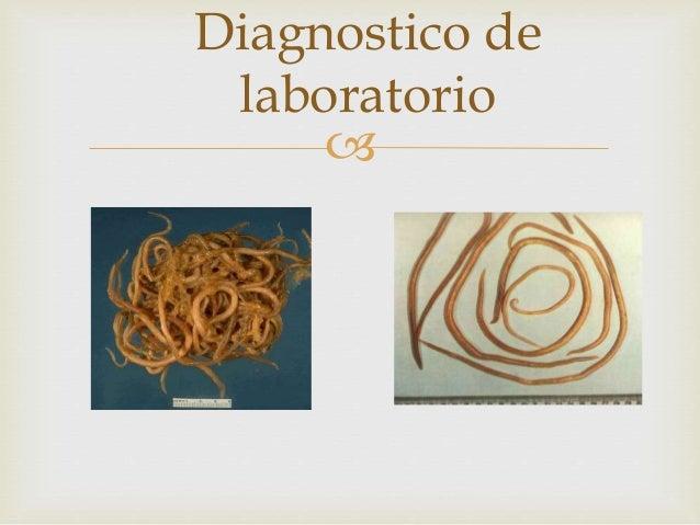 TRATAMIENTO Parasitosis Droga(s) de elección Ascariasis • Mebendazol: 100 mg BID por 3 días o 500 mg una sola vez • Alben...