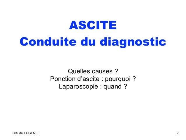 ASCITE Conduite du diagnostic Quelles causes ? Ponction d'ascite : pourquoi ? Laparoscopie : quand ? Claude EUGENE 2