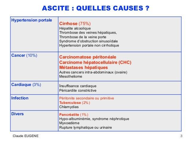 Ascite Conduite Du Diagnostic