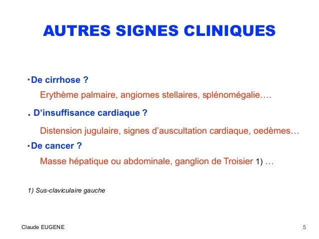 AUTRES SIGNES CLINIQUES • De cirrhose ? Erythème palmaire, angiomes stellaires, splénomégalie…. . D'insuffisance cardiaque...
