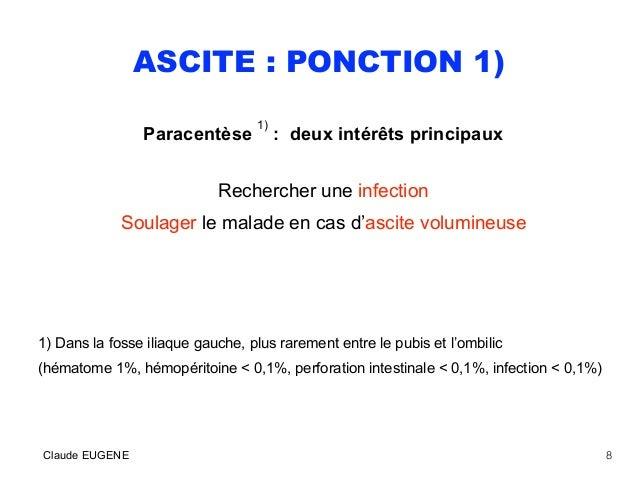 ASCITE : PONCTION 1) Paracentèse 1) : deux intérêts principaux Rechercher une infection Soulager le malade en cas d'ascite...