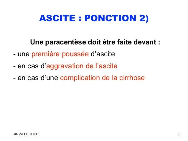 ASCITE : PONCTION 2) Une paracentèse doit être faite devant : - une première poussée d'ascite - en cas d'aggravation de l'...