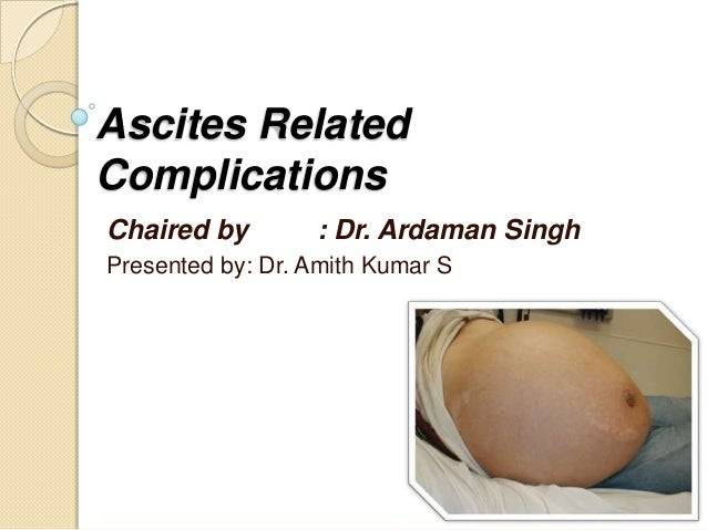 Ascites Related Complications Chaired by : Dr. Ardaman Singh Presented by: Dr. Amith Kumar S