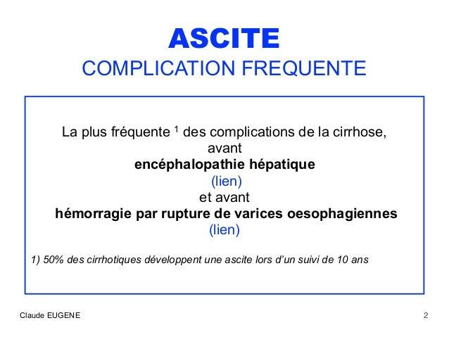 Ascite au cours de la cirrhose : traitements Slide 2
