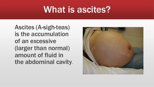 what is in ascites fluid