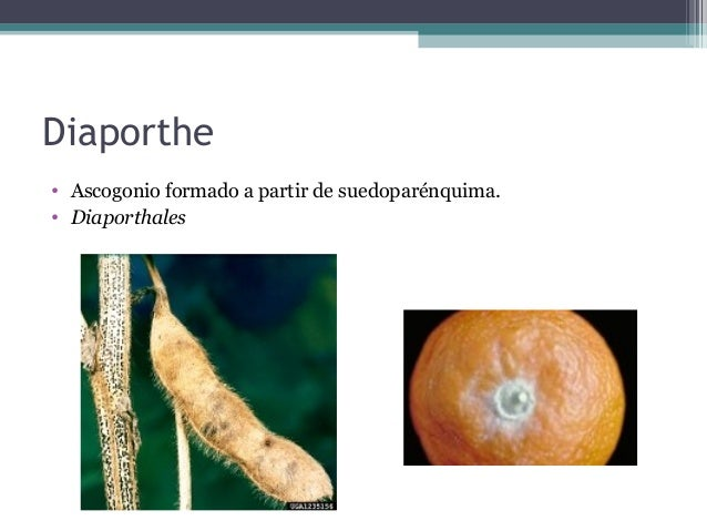 • 4 tipos de apéndice: • a) micelioides, semejantes a hifas somáticas por ser fláccidos, largos y simples. • b) rígidos y ...