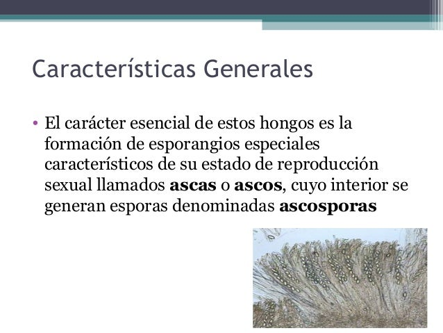 Características Generales • El carácter esencial de estos hongos es la formación de esporangios especiales característicos...