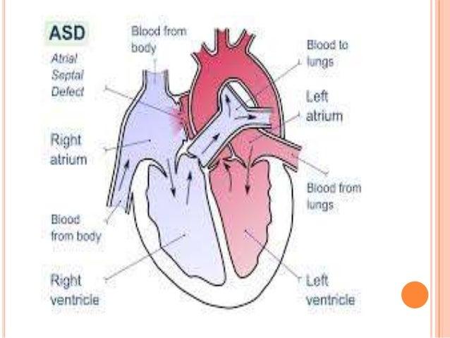 ATRIAL SEPTAL DEFECT ( ASD)