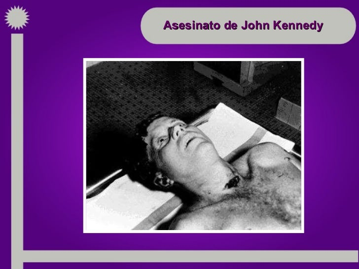 Asesinato John Kennedy