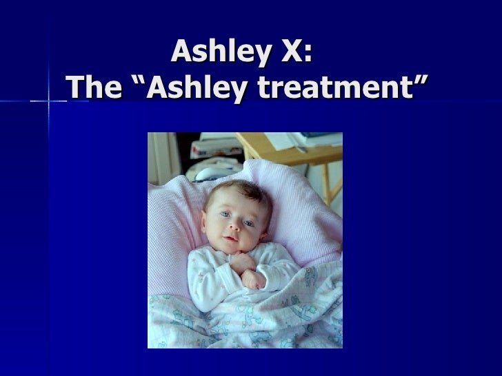 "Ashley X:  The ""Ashley treatment"""