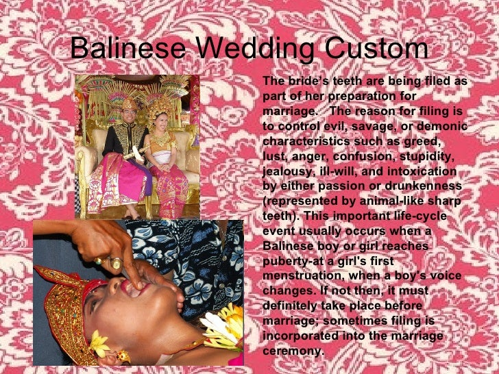 Balinese Wedding Custom The bride's teeth are being filed as part of her preparation for marriage.  The reason for filing ...