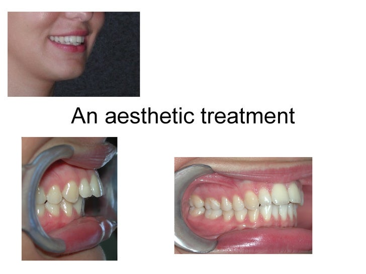 An aesthetic treatment