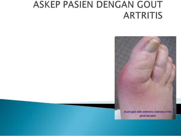 Askep Pasien Dengan Gout Artritis